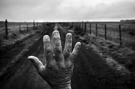 Uñas quemadas de la mano de un hombre que trabajó nueve años como aplicador . A demás padece de cirrosis, tres hernias de disco y tiene agroquímicos en sangre. Foto: Pablo Piovano.
